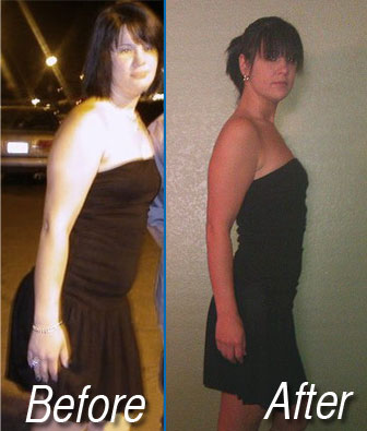 before and after hcg